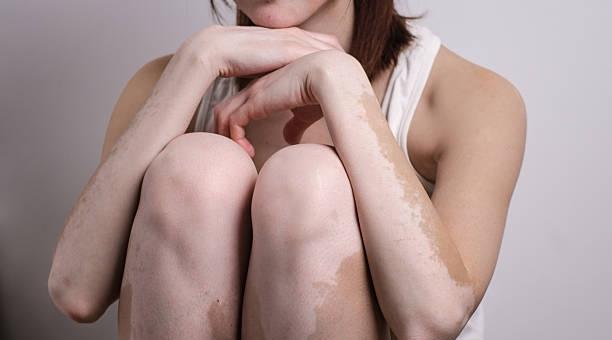 Vitiligo se vindeca